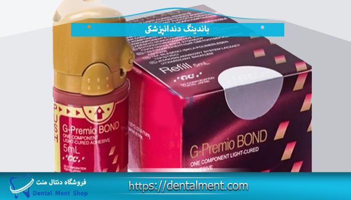 باندینگ دندانپزشکی