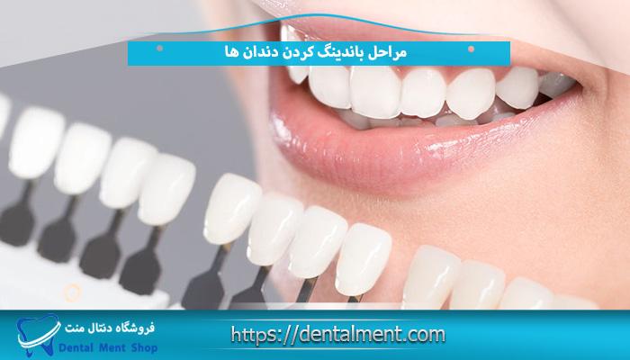 مراحل باندینگ کردن دندان ها